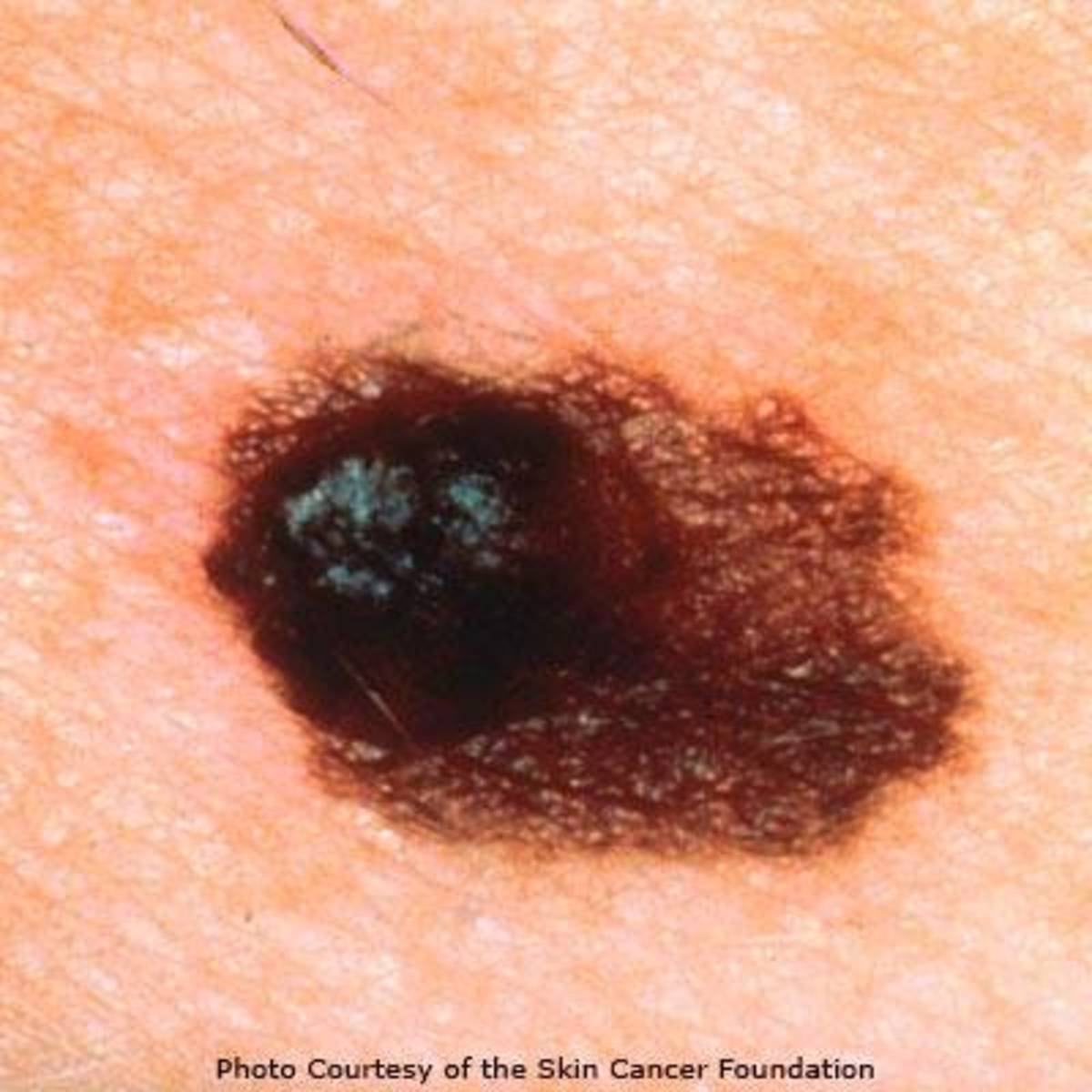 my-melanoma-scare-a-personal-story-with-some-tips-on-preventing-and-spotting-skin-cancer