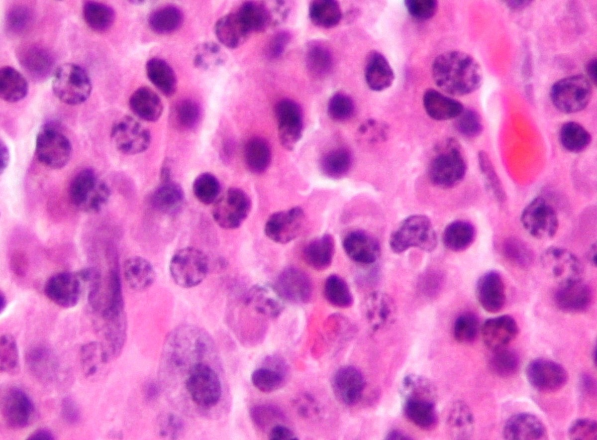 The micrograph shows abundant malignant plasma cells. Multiple Myeloma