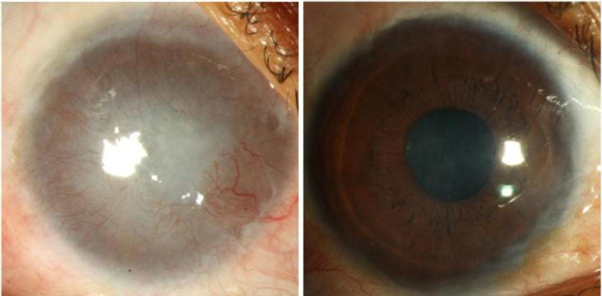 Plaster in the eye can cause Severe Damage or Blindness - Wear Goggles