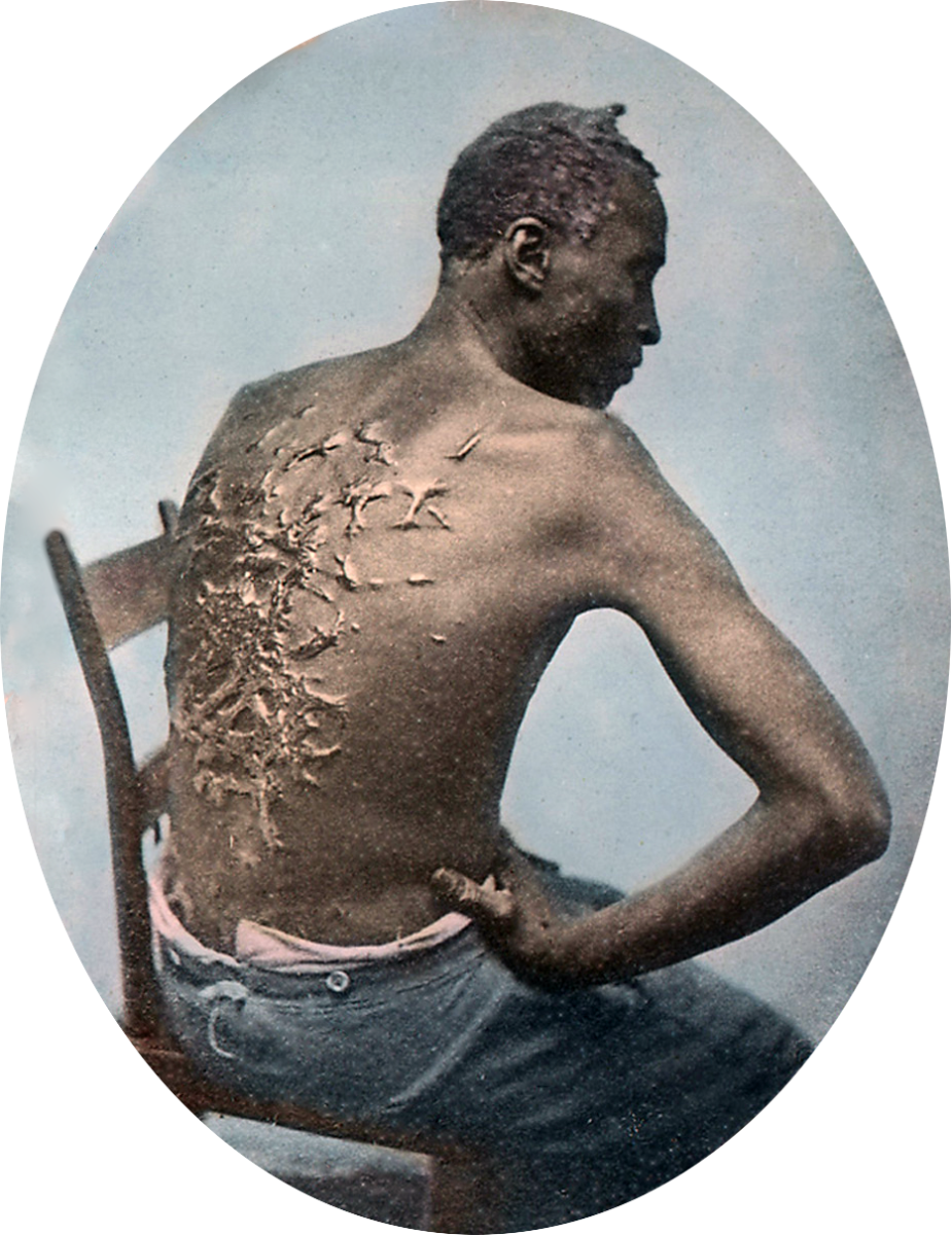 Slave, Gordon whipped in the United States Of  America as discussed in the slave narratives in the Hub. Gordon was a slave on a Mississippi plantation who made his escape from bondage in March, 1863. In order to foil the scent of the blood-hounds who