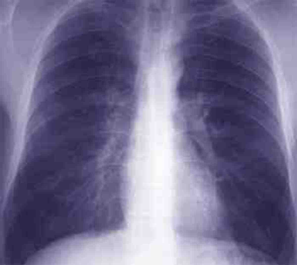 X-ray Of Bronchitis in Lungs Source globalrph.com