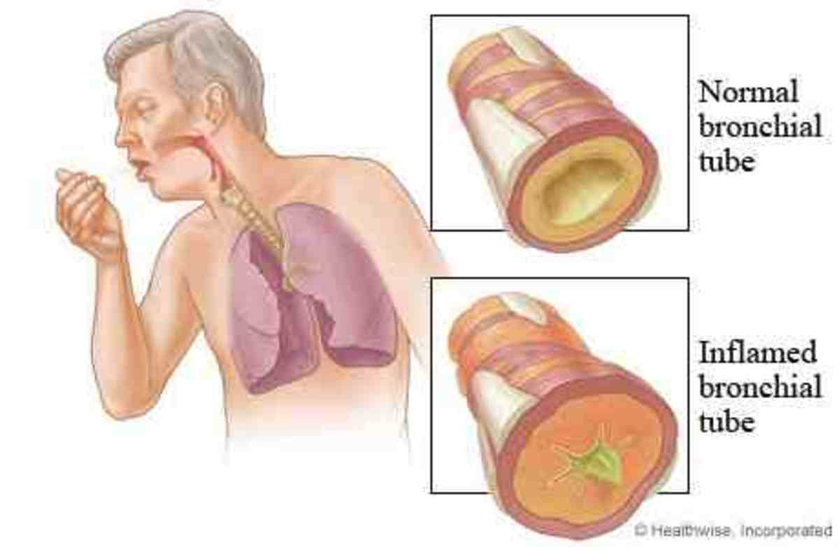 Bronchial Tubes webmd.com