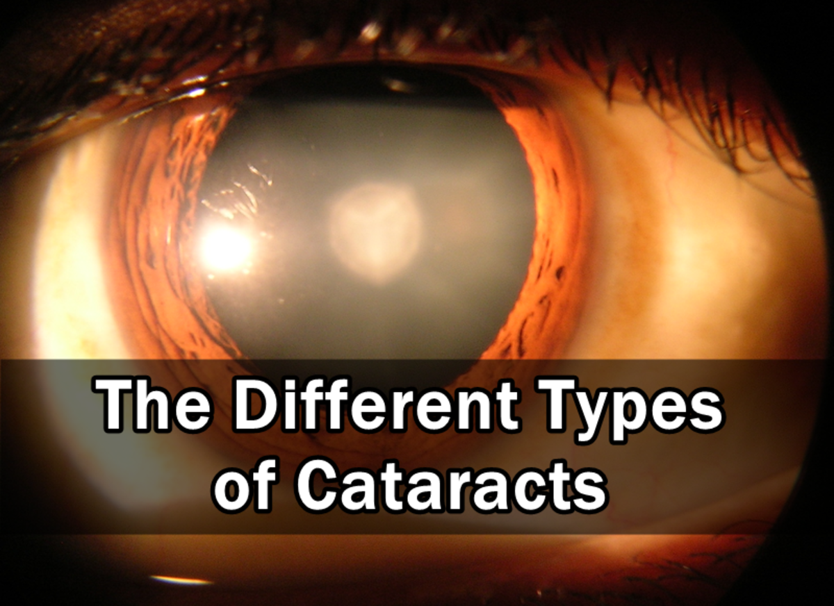 the-different-types-of-cataracts