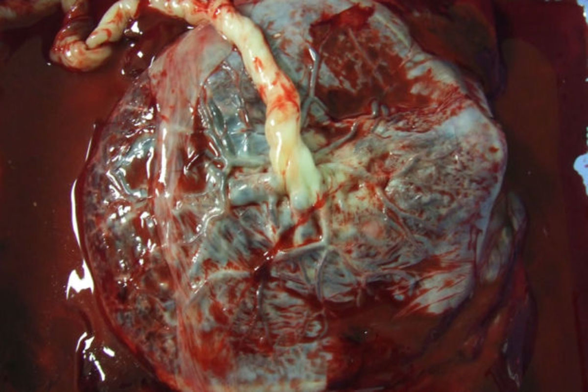 Human Placenta  -People who dare it this believe that it prevents postpartum depression and other pregnancy complications. There are various recipes to prepare it, even cocktails and it is found mostly in America and Europe, Mexico, Hawaii, China, an