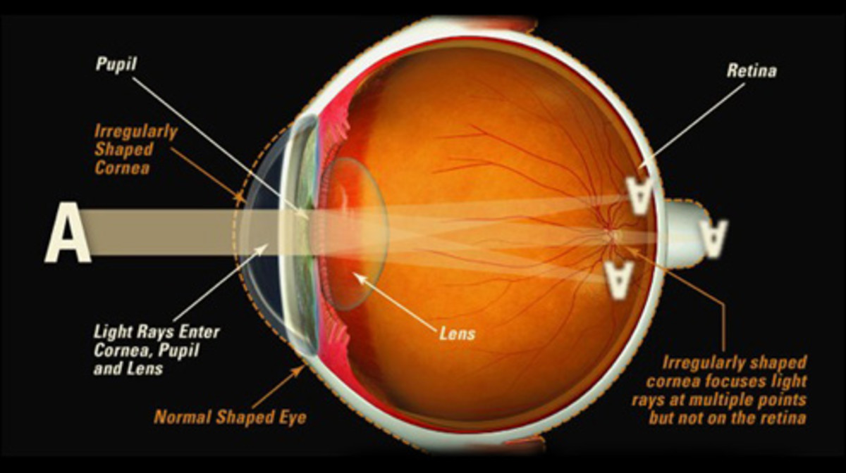 Light enters the eye through the cornea. It is refracted by the cornea and the lens onto the retina. From the retina, impulses are sent to the brain via the optic nerve.