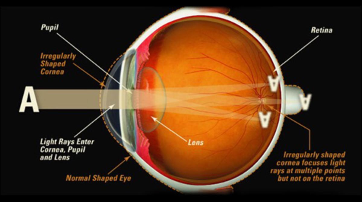 Diagram of the Eye Illustrating How the Eye Works