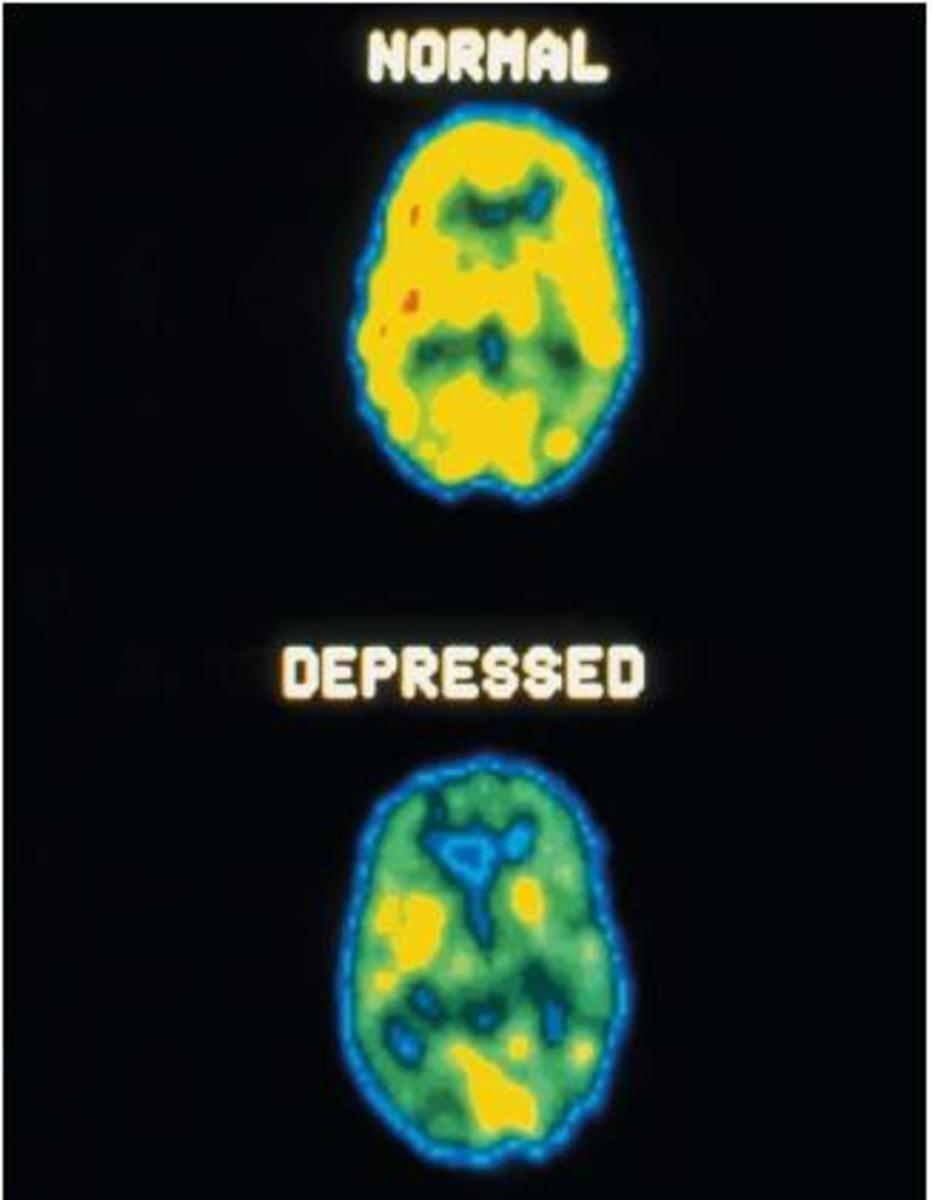 PET scan of the brain for Depression.
