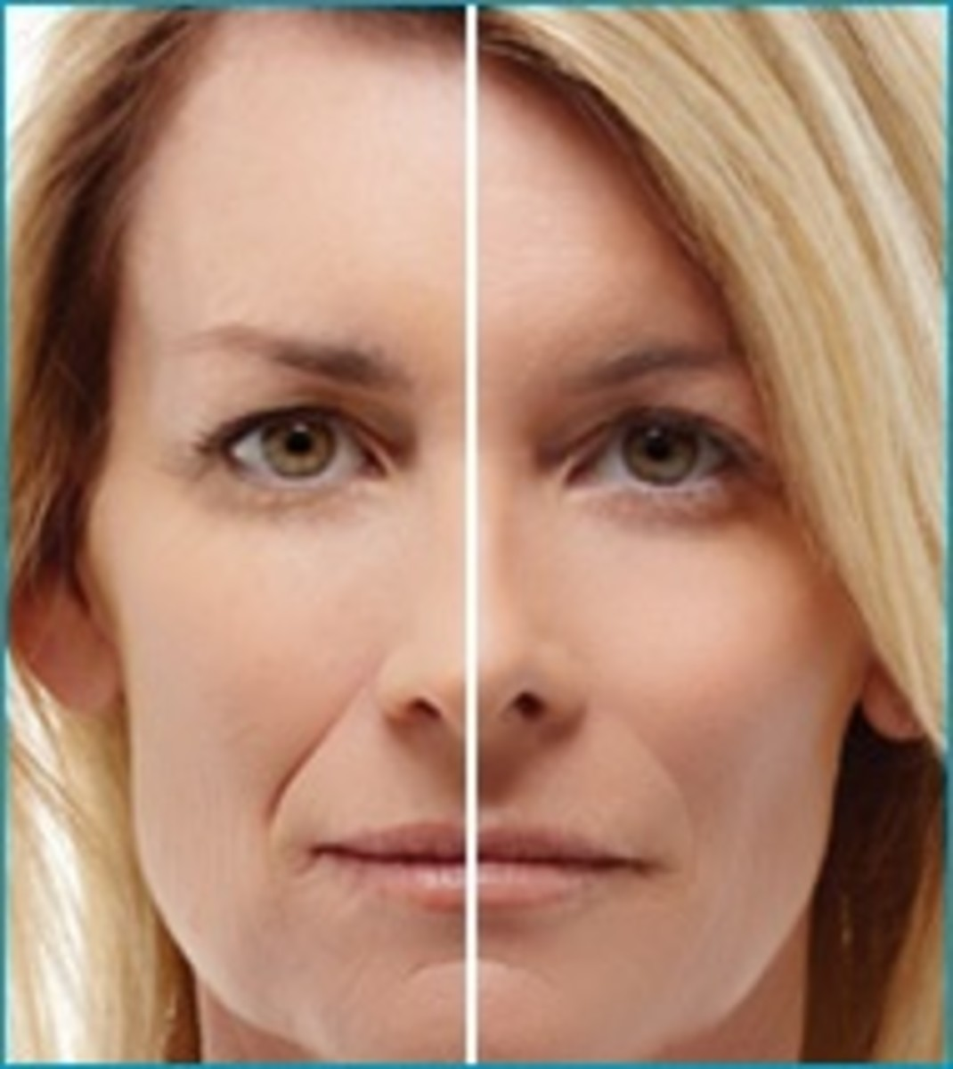 how to get rid of wrinkles between breasts