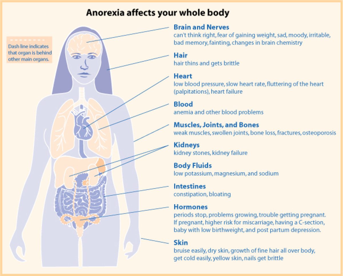 Signs of anorexia.