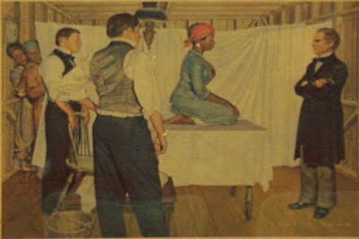 J. Marion Sims with Anarcha, Betsey, Lucy and two physicians. ( Artist rendering by Robert Thom, historical illustrator.)