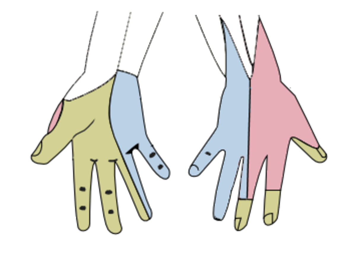 Green: the median nerve; Blue: the ulnar nerve; Red: the radial nerve