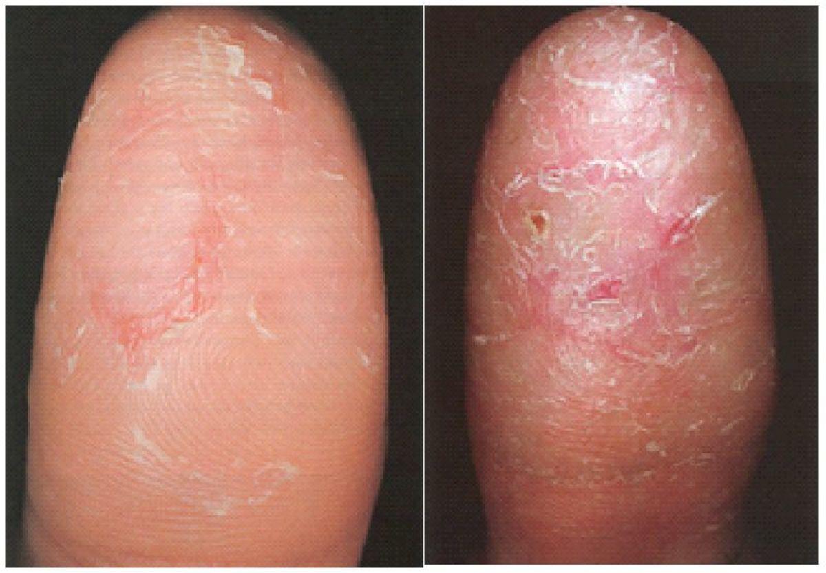 Eczema on the fingertip