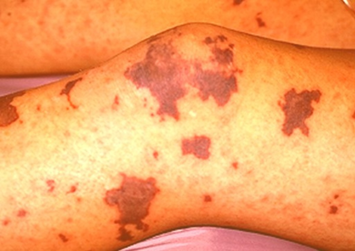 Meningitis Symptoms Treatment Causes Rash Pictures