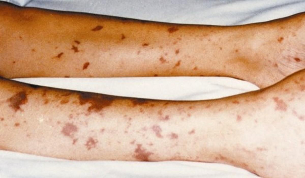 meningitis-symptoms-treatment-causes-rash-pictures