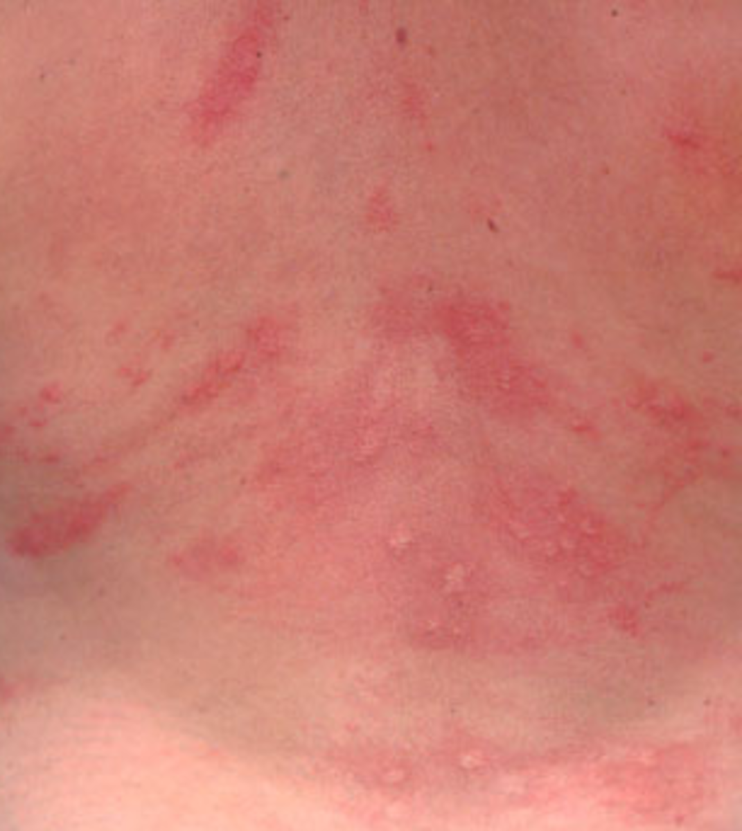 rashes on torso not itchy