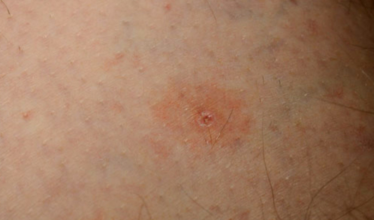 Tick Bite Pictures, Images & Photos | Photobucket