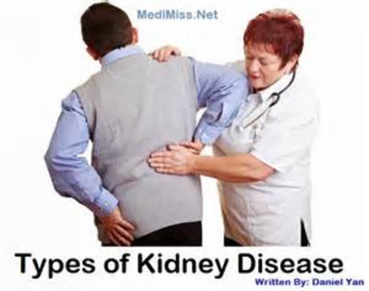 There are so many different types of Kidney Diseases out there