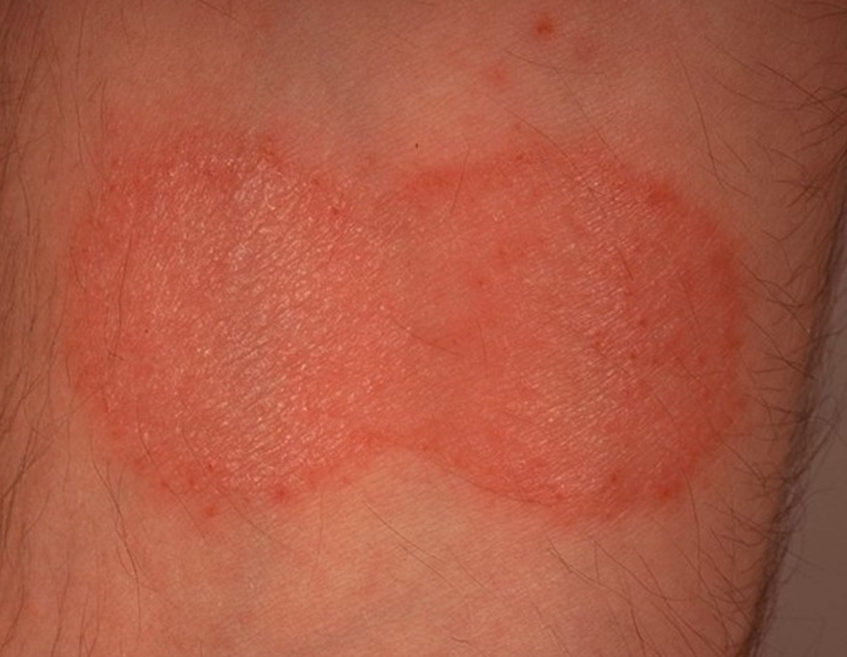 Mycosis Fungoides - Pictures, Staging, Symptoms, Treatment and Causes