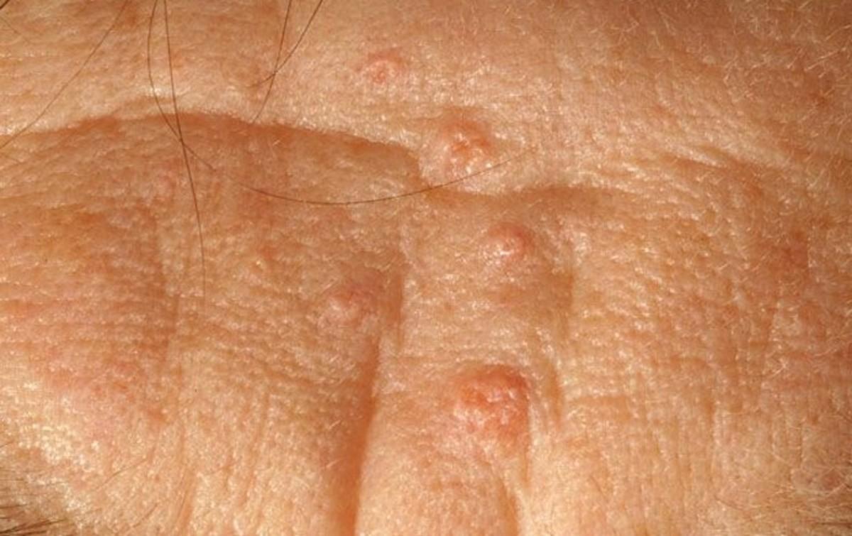 sebaceous-glands