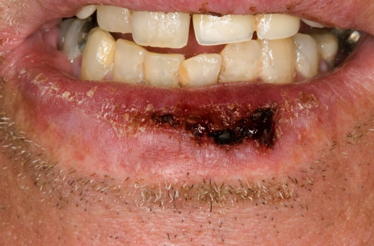 lip cancer pictures causes symptoms treatment hubpages