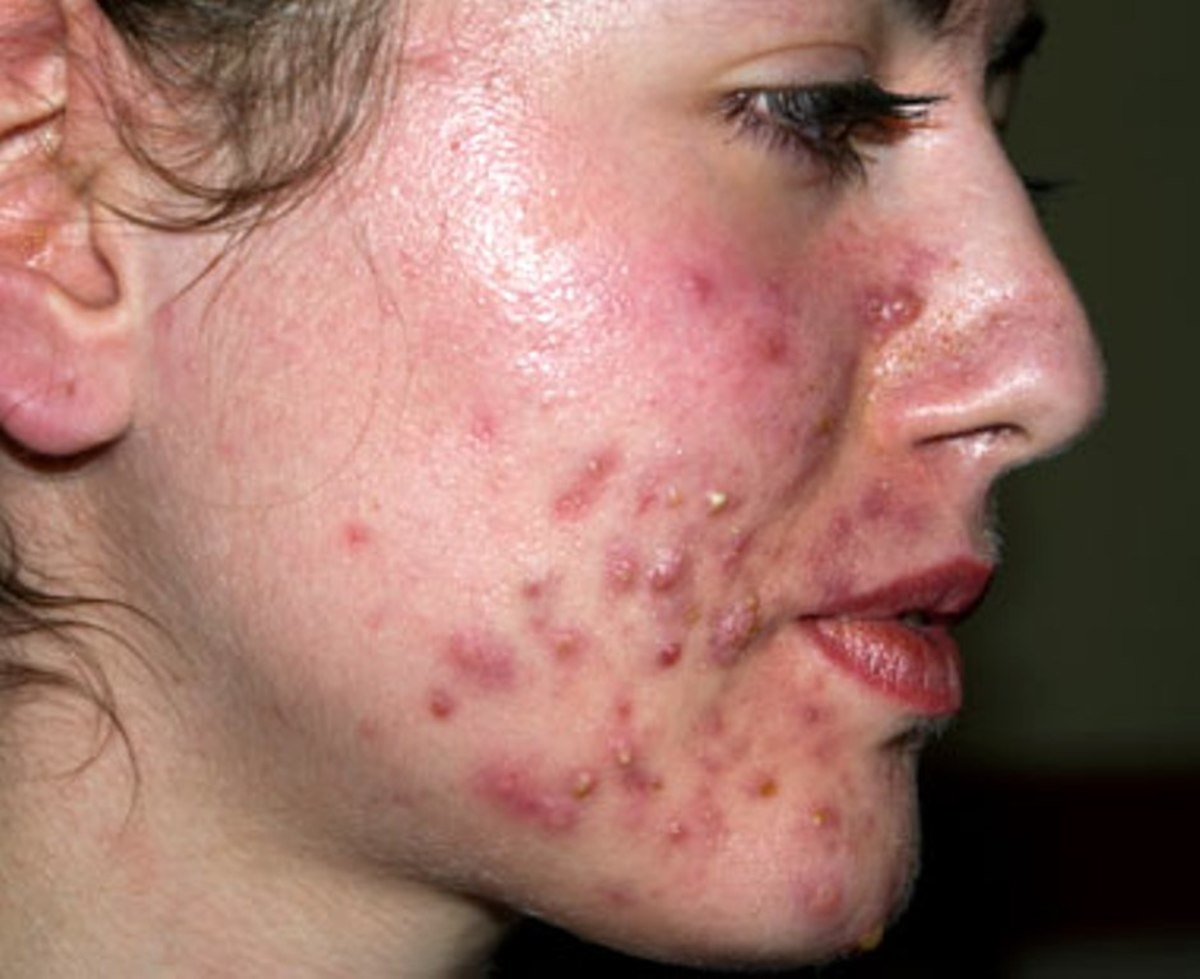 how to get rid of inflamed acne