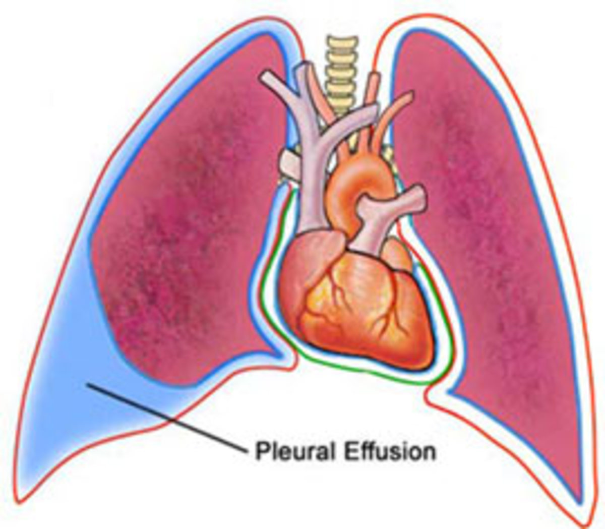 Pleural effusion is usually diagnosed on the basis of medical history and physical exam, and confirmed by chest x-ray. Once accumulated fluid is more than 300 ml,