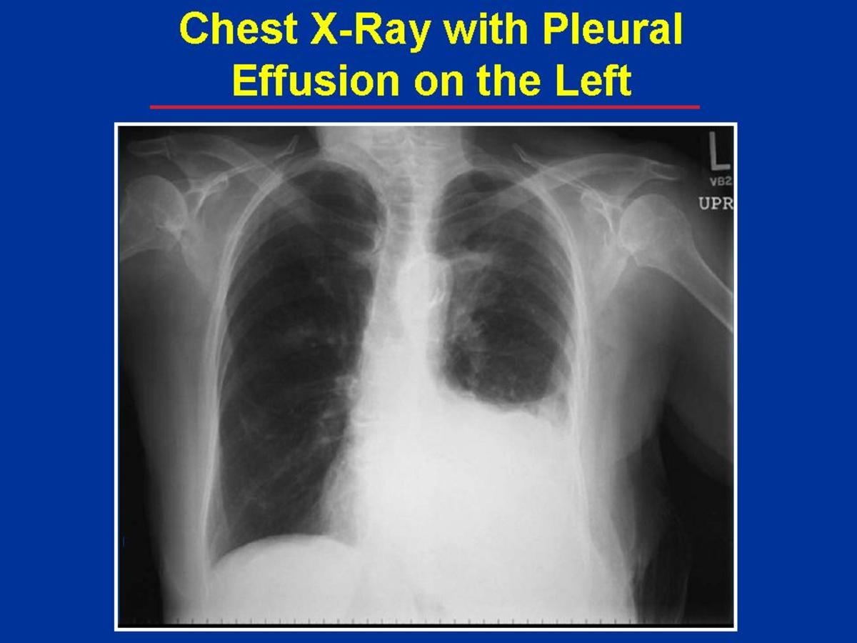 Exudative pleural effusions, by contrast, are caused by alterations in local factors that influence the formation and absorption of pleural fluid (e.g., bacterial pneumonia, cancer, pulmonary embolism, and viral infection).