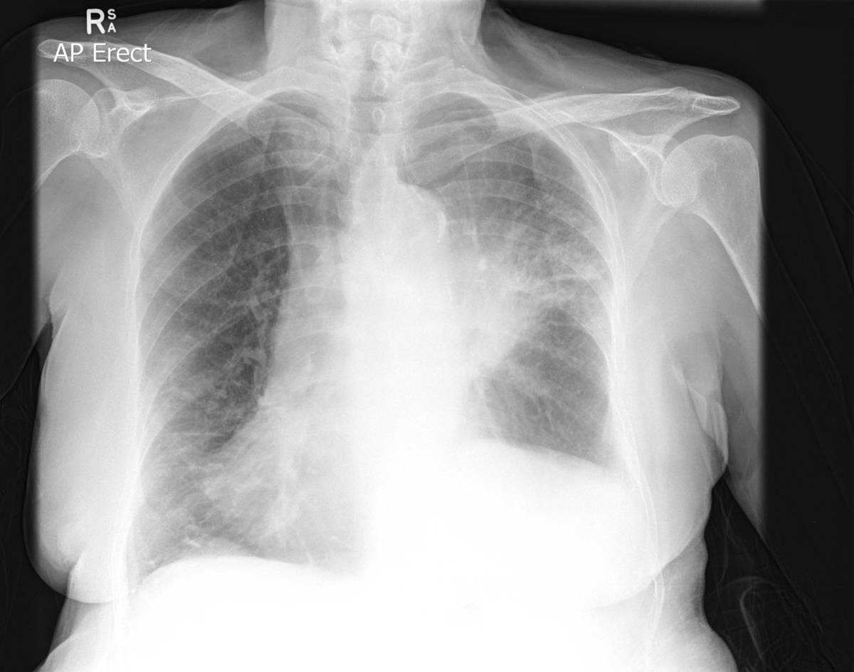 A pleural effusion will show up as an area of whiteness on a standard posteroanterior X-ray. Normally the space between the two layers of the lung, the visceral pleura and the parietal pleura, cannot be seen.