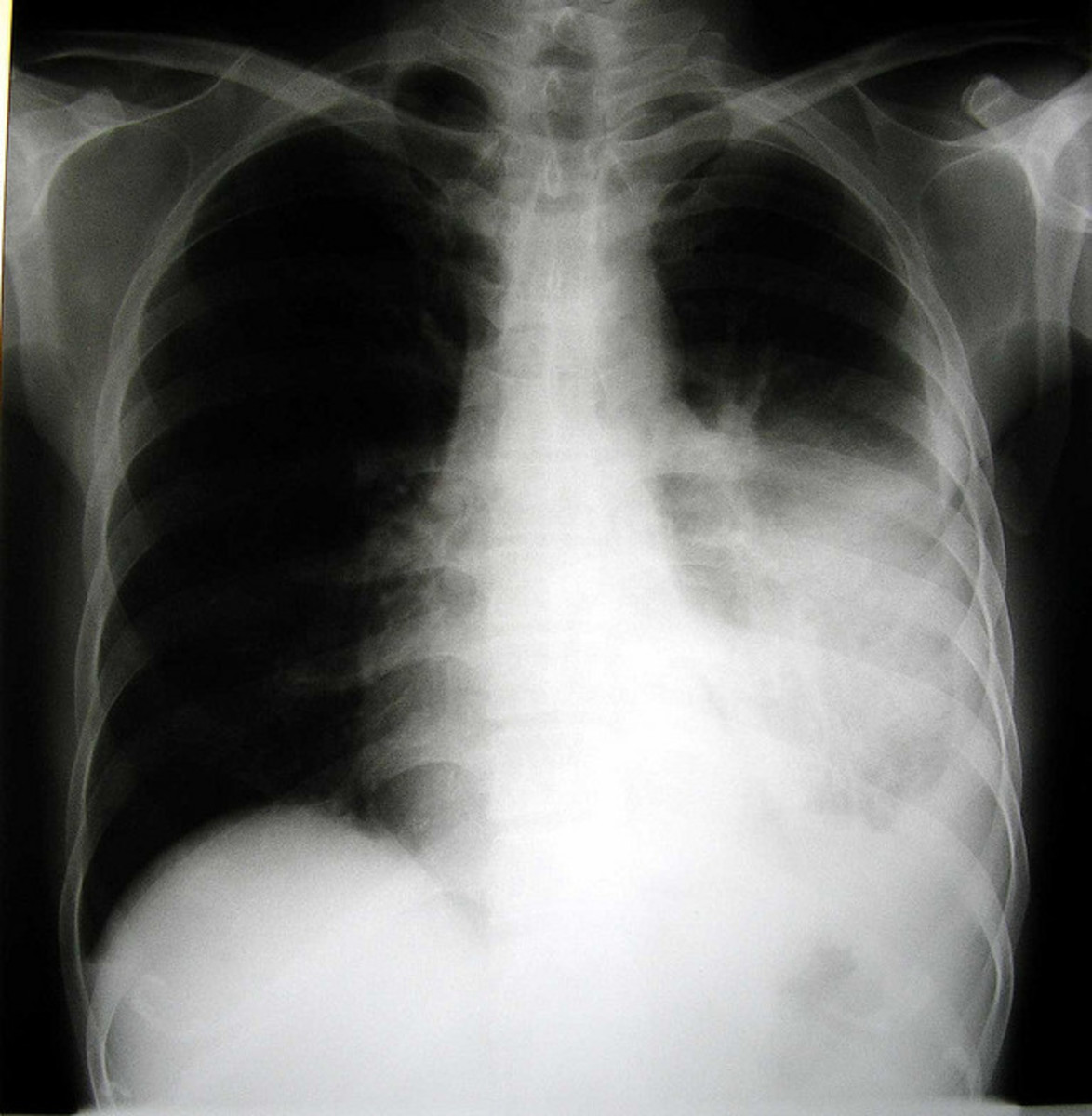 Above the effusion, where the lung is compressed, there may be bronchial breathing and egophony. In large effusion there may be tracheal deviation away from the effusion.