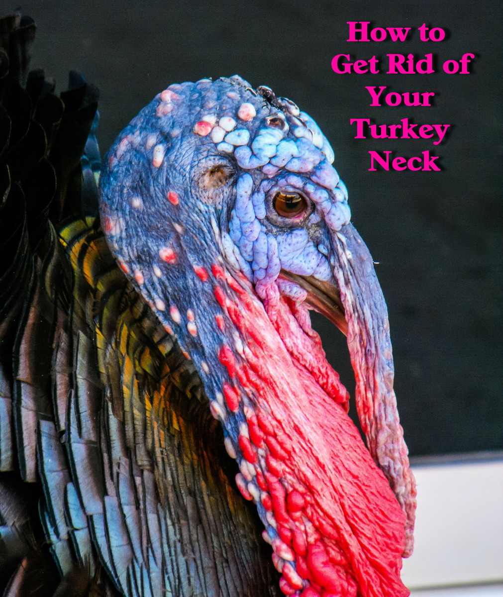 How to Get Rid of Your Turkey Neck