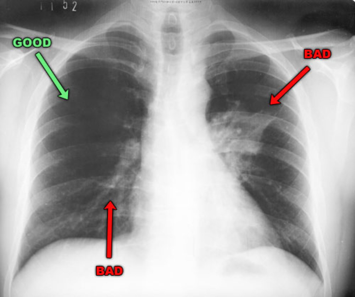 A chest radiograph is frequently used in diagnosis. In people with mild disease, imaging is needed only in those with potential complications, those not having improved with treatment, or those in which the cause is uncertain