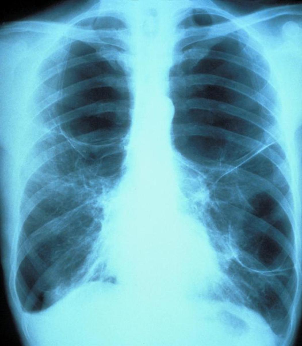 Bacterial and viral cases of pneumonia usually present with similar symptoms. Some causes are associated with classic, but non-specific, clinical characteristics.