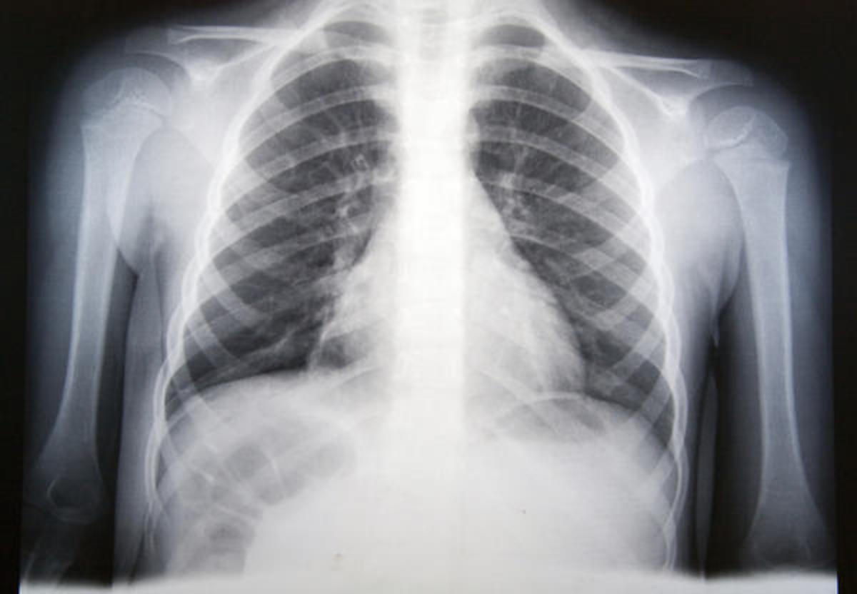 Radiographs of viral pneumonia may appear normal, appear hyper-inflated, have bilateral patchy areas, or present similar to bacterial pneumonia with lobar consolidation.