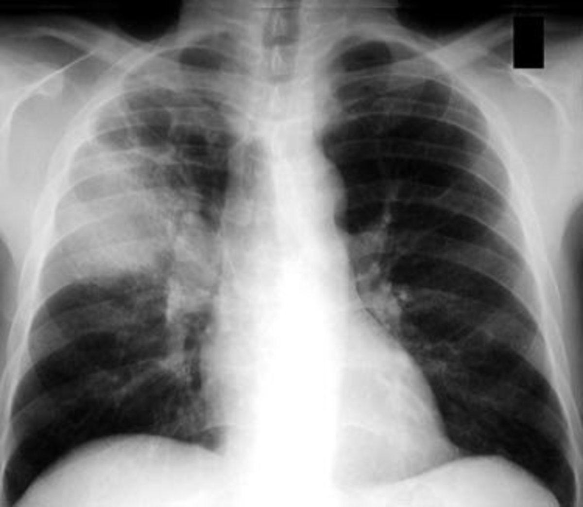 Pneumonia Manifestation Seen And Diagnosed Via X-Rays