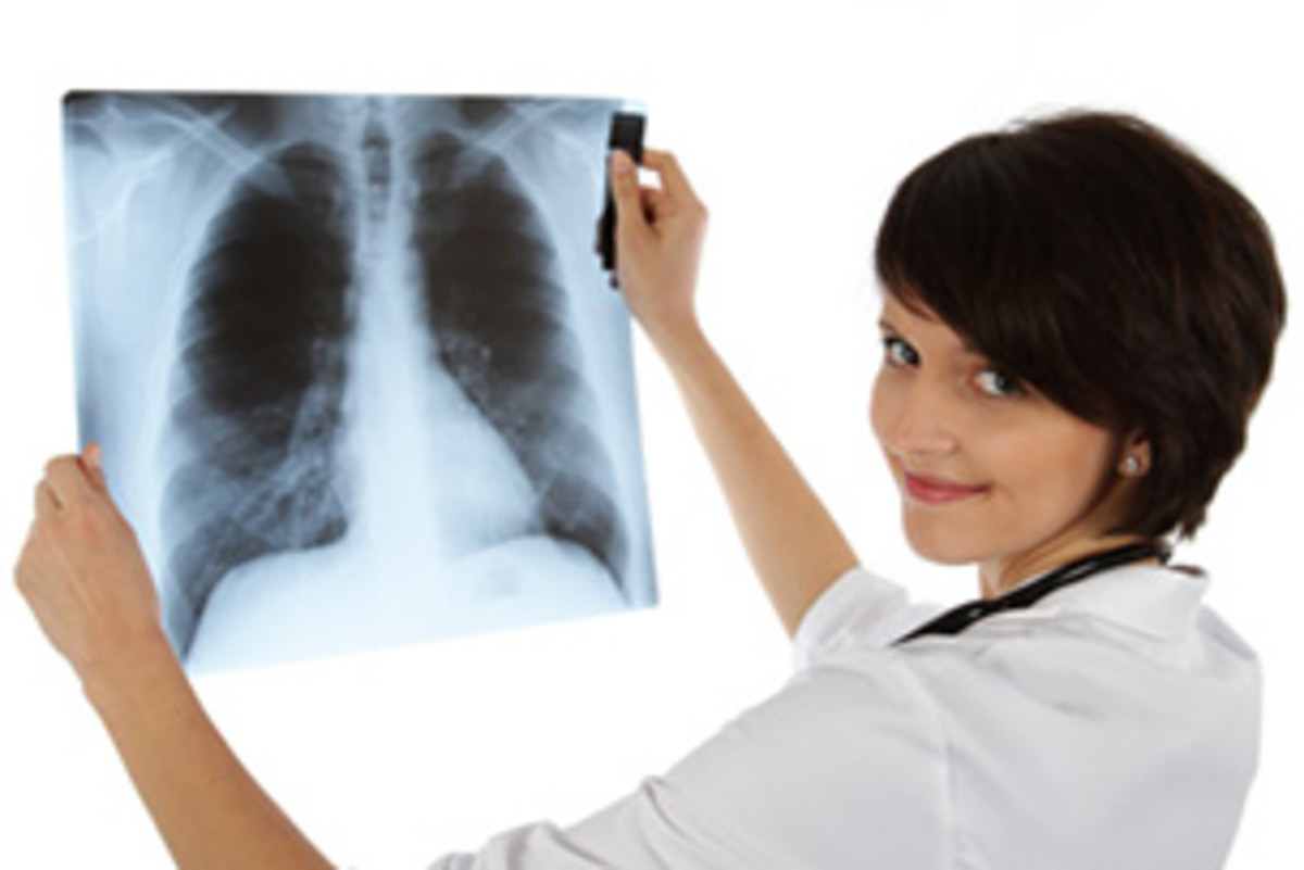 Pneumonia Manifestation Seen And Diagnosed Via X-Rays: Different Radiographs To Show Lung Tissue Consolidation