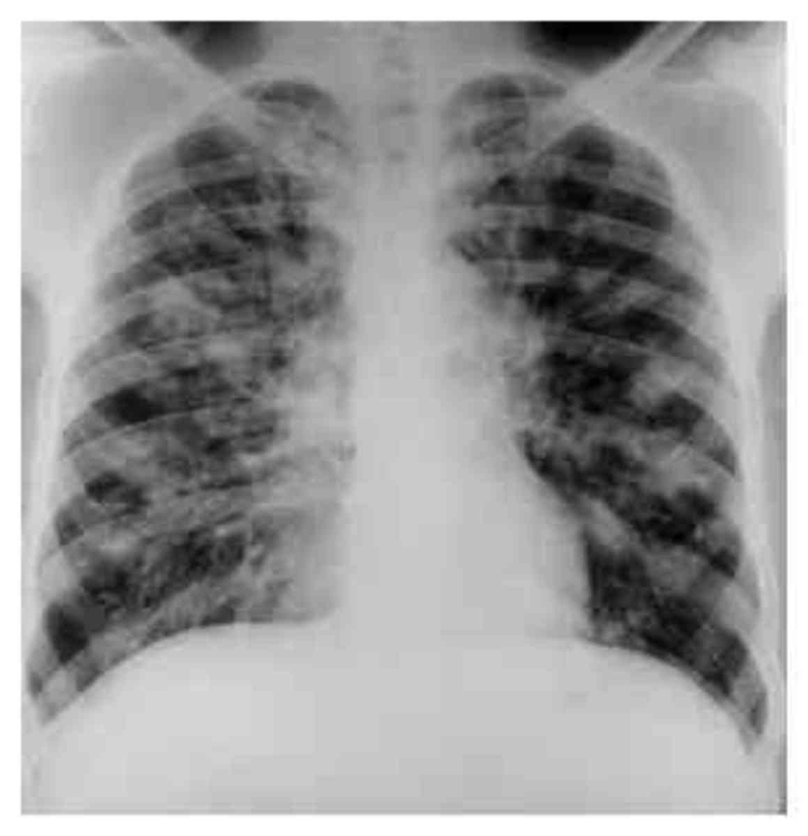 Pneumonia caused by Legionella may occur with abdominal pain, diarrhea, or confusion, while pneumonia caused by Streptococcus pneumoniae is associated with rusty colored sputum,