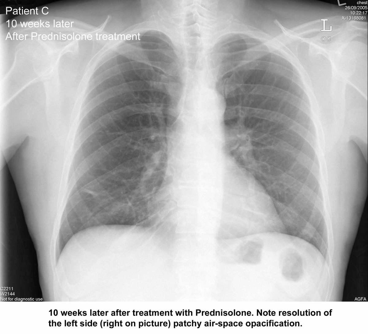 organising pneumonia steroids
