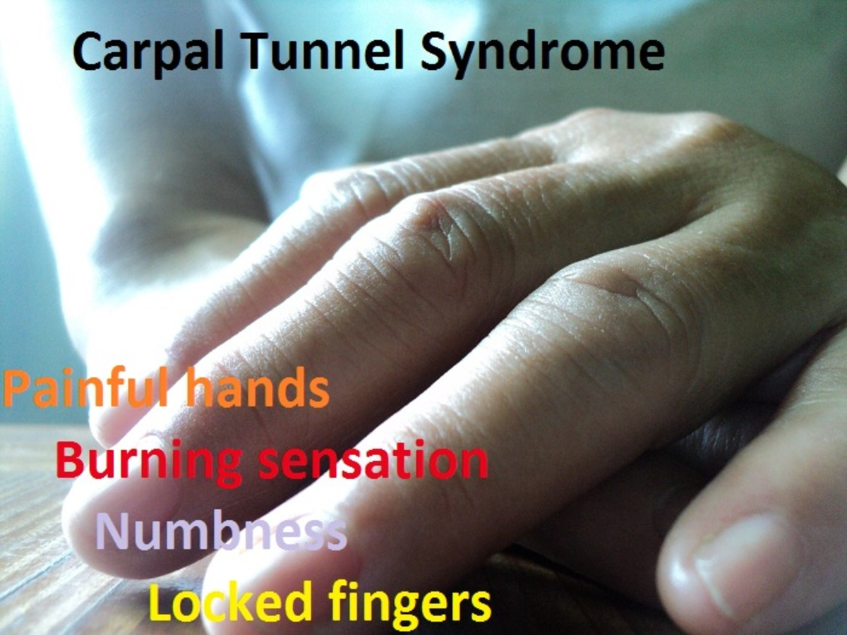 open-carpal-tunnel-release-surgery-not-an-effective-cure-for-painful-hands-carpal-tunnel-syndrome