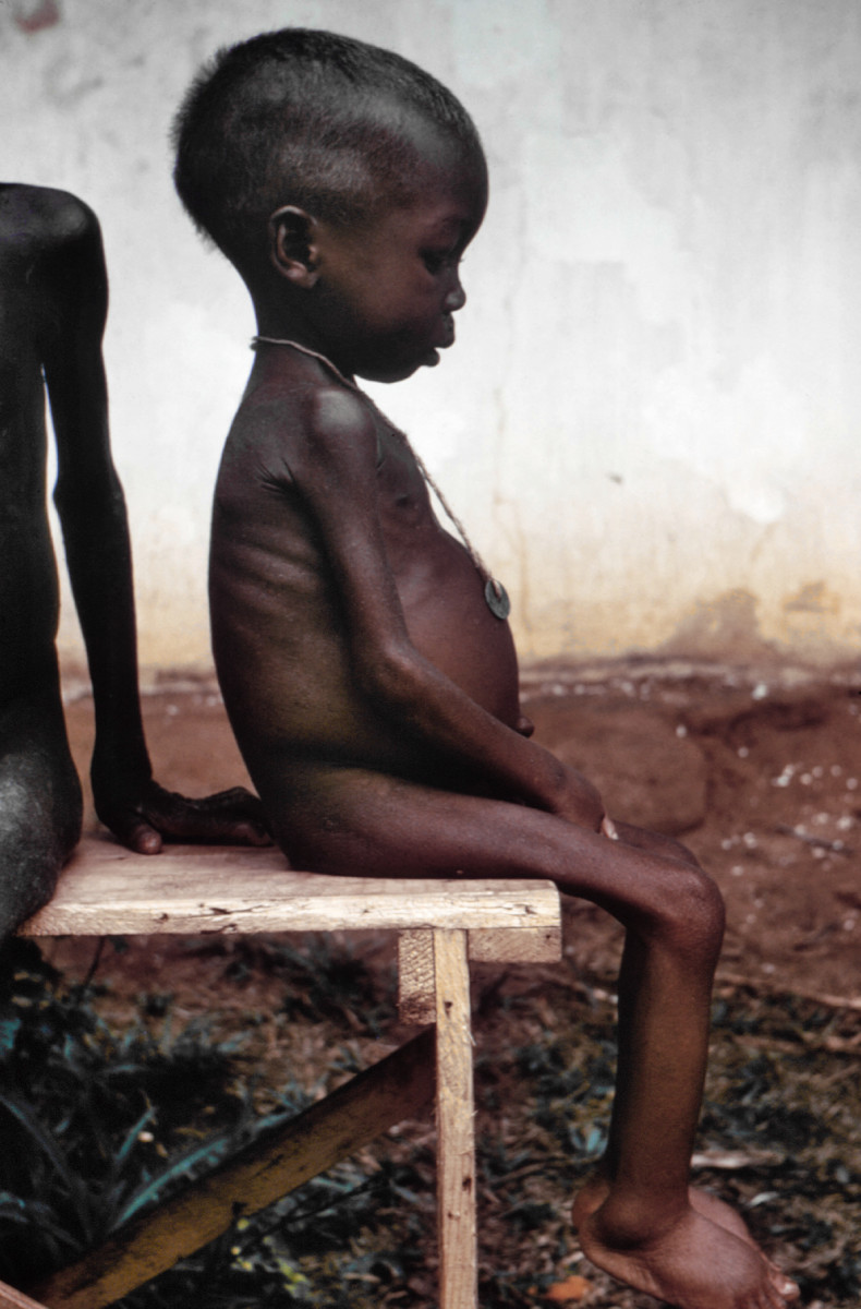 Marasmic Kwashiorkor: Clinical Manifestations, Prognosis, Treatment, Prevention And Rehabilitation