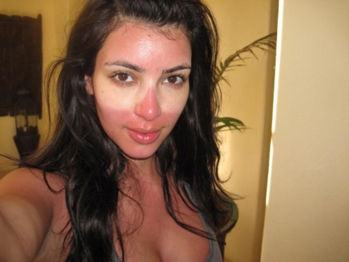 Celebrity Kim Kardashian sporting a very painful looking sunburn.
