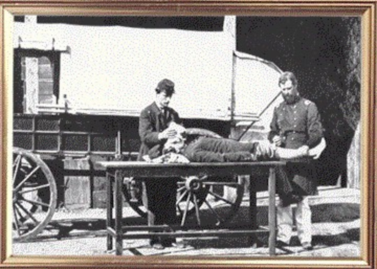"""In a posed photographed, chloroform is administered to a """"patient"""" before amputation"""