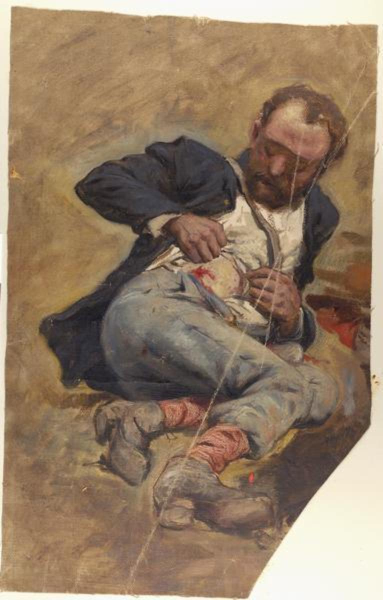Painting - a wounded soldier examines his injury