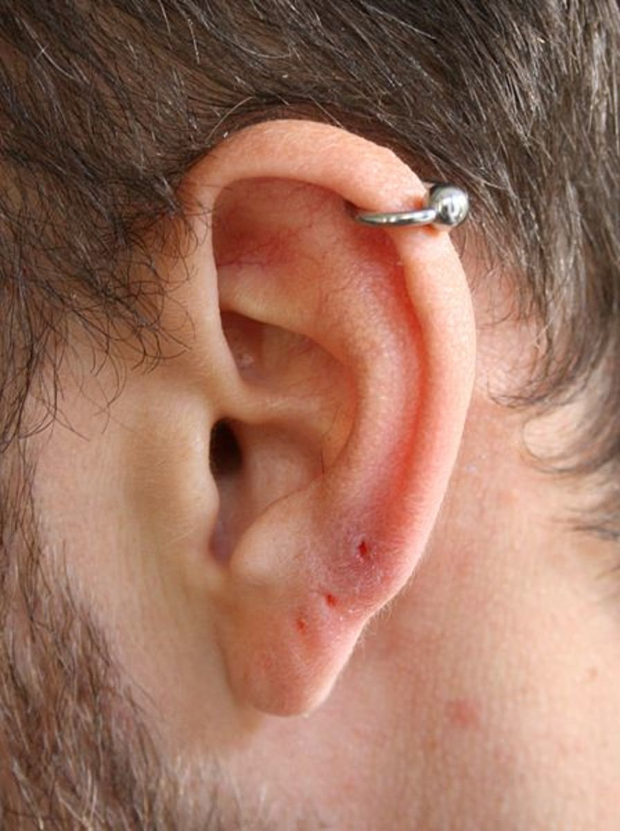 Double or Triple Forward Helix Piercing - Pain, Aftercare, Healing and Jewelry