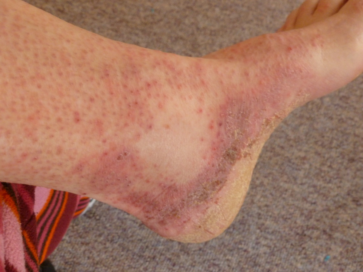 ankle rash after 5 days
