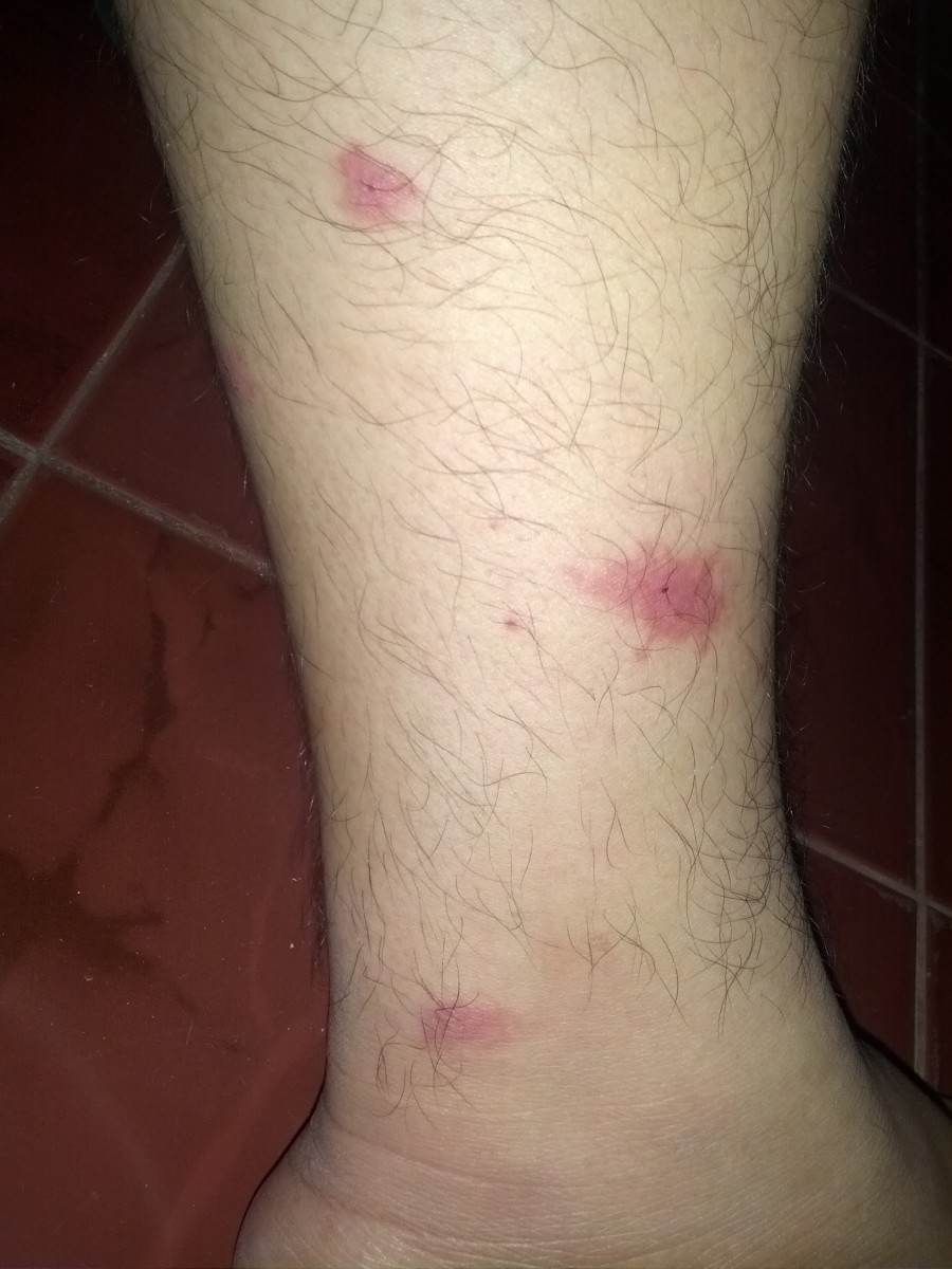 Several mosquito bites on a leg that have been scratched and inflamed.