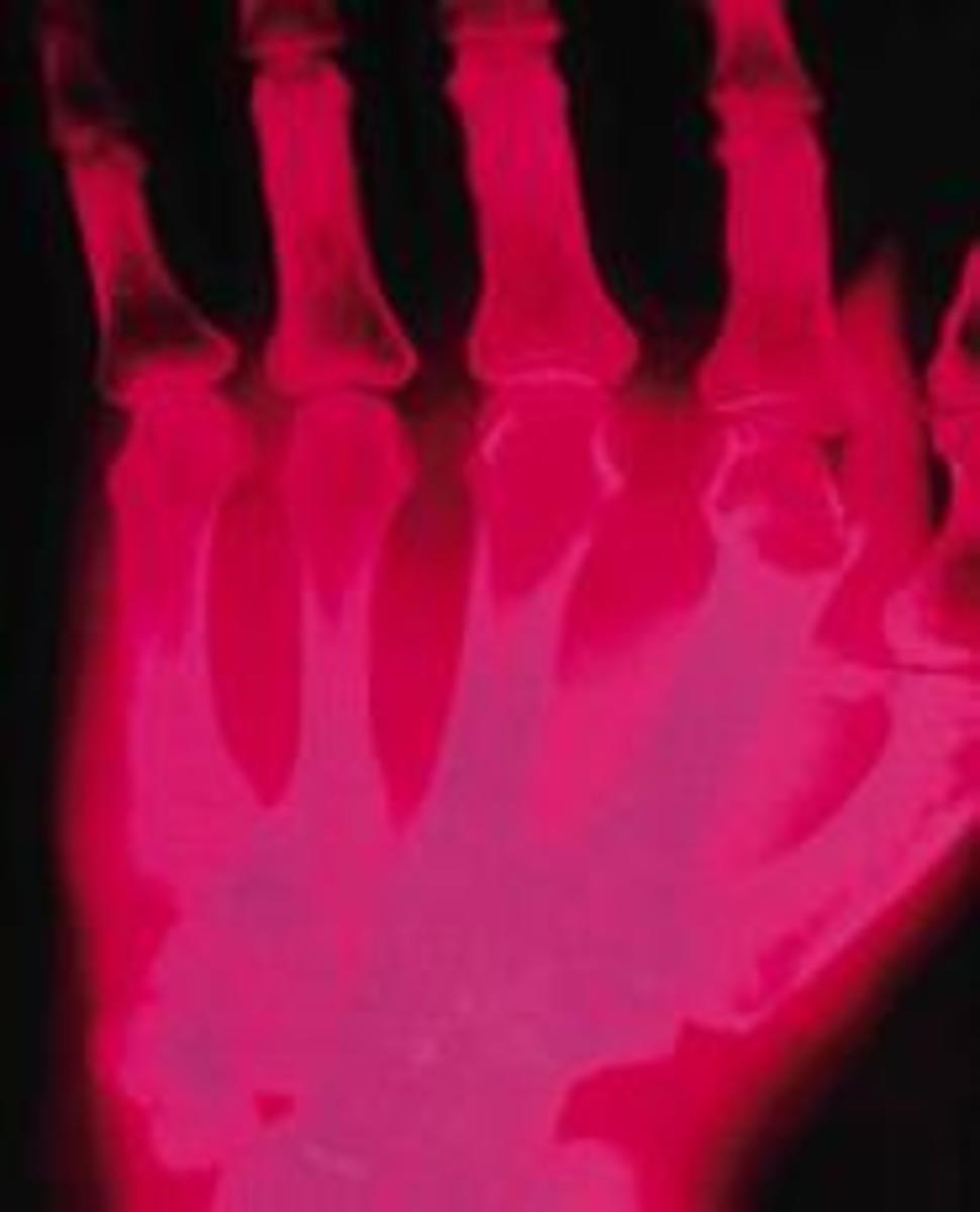 X-ray of an arthritic hand