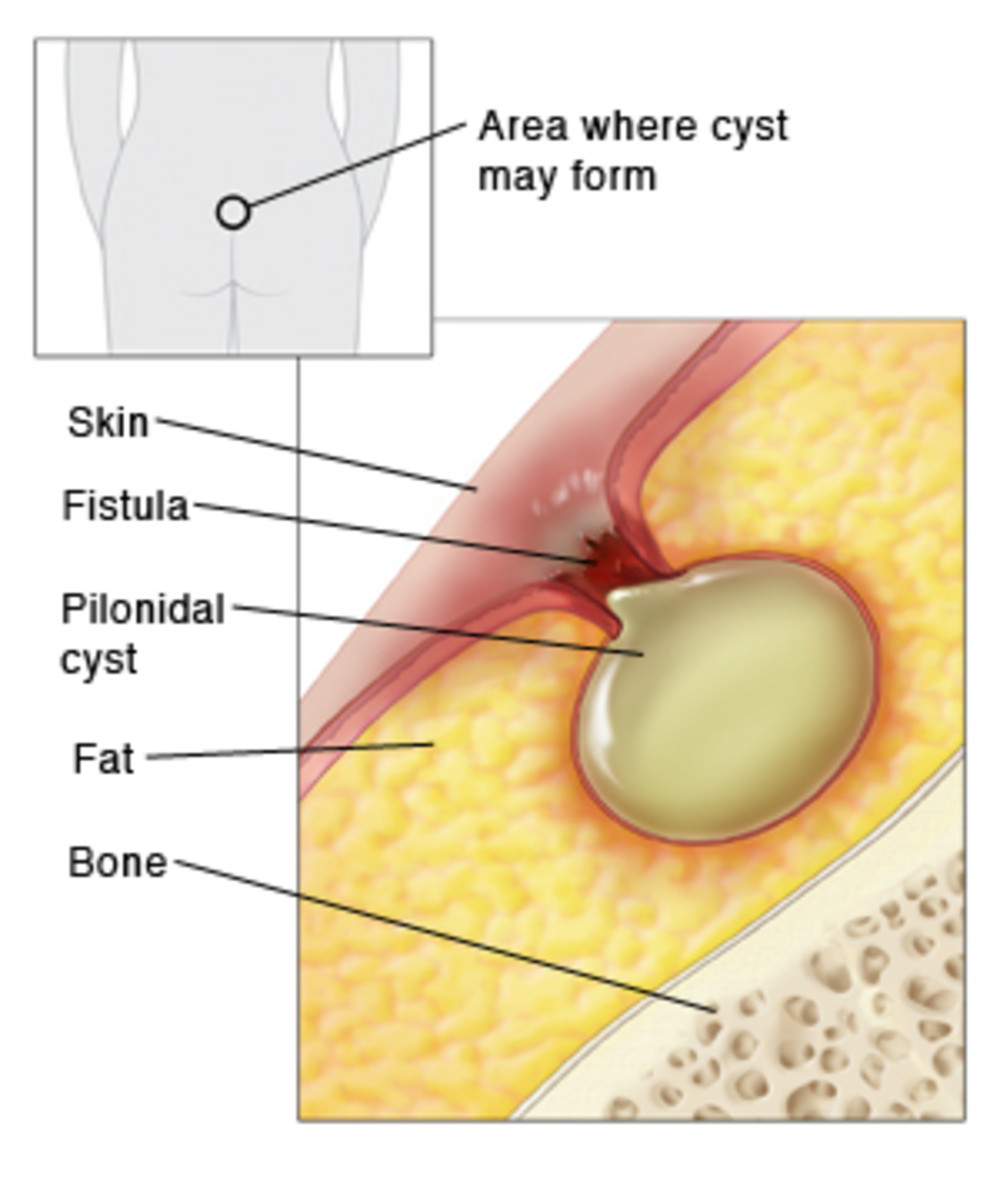 Definitive Guide To Pilonidal Cysts