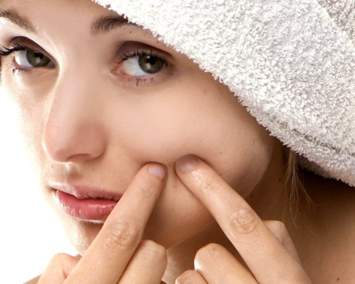 Get Rid of Blackheads for Good