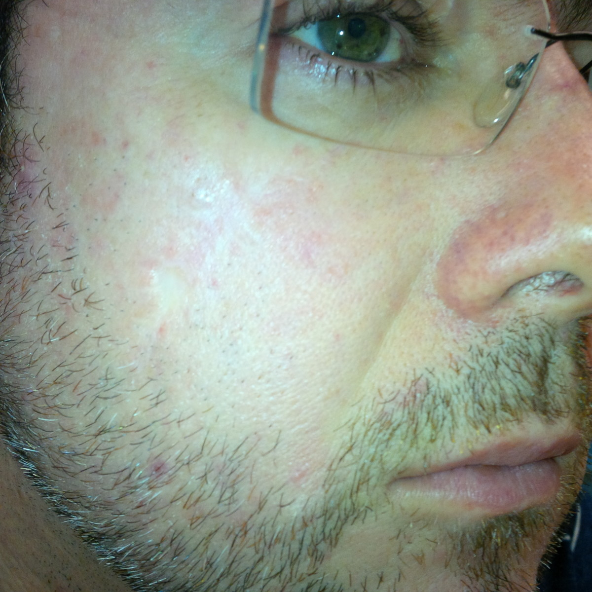 Here we are a year on. there is no doubt that continued use with reduce a scar to barely visible