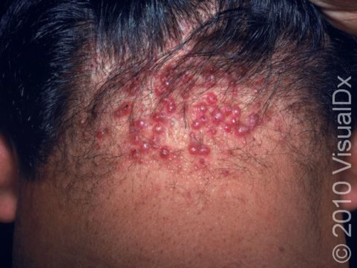 Nasty Bumps on the Back of Your Head: What Are They, and How to Get Rid of Them